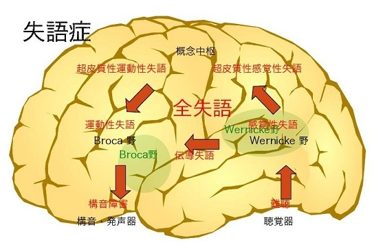 失語症 と は 感覚 性